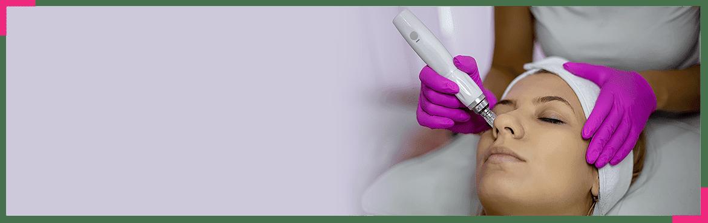 Dermapen - czas dla pięknej skóry