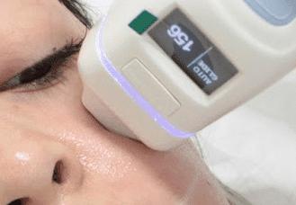 emerge odmładzanie usuwanie zmarszczek blizn poznań laser frakcyjny
