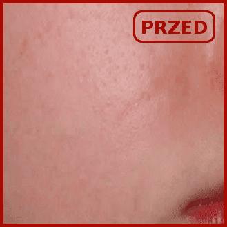 efekty emerge odmładzanie usuwanie zmarszczek blizn poznań laser frakcyjny